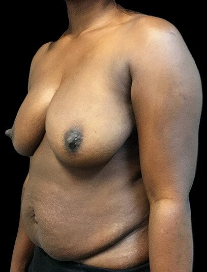 Mummy Makeover Breast Reduction Abdominoplasty AA Before