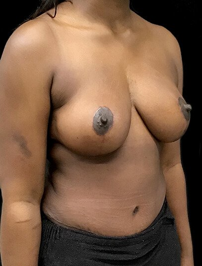 Mummy Makeover Breast Reduction Abdominoplasty AA Diag After