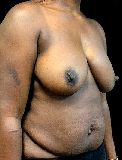 Mummy Makeover Breast Reduction Abdominoplasty AA Diag Before