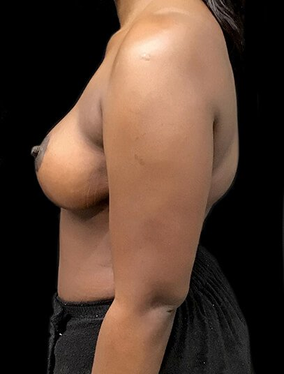 Mummy Makeover Breast Reduction Abdominoplasty AA Side After