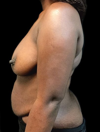 Mummy Makeover Breast Reduction Abdominoplasty AA Side Before