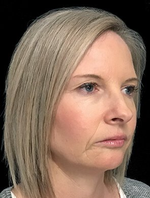 NV Botox And Filler Total Face After 2