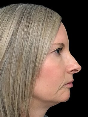 NV Botox And Filler Total Face After 3
