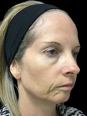NV Botox And Filler Total Face Before 2