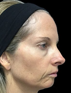 NV Botox And Filler Total Face Before 3