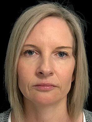 NV Botox And Filler Total Face After 1