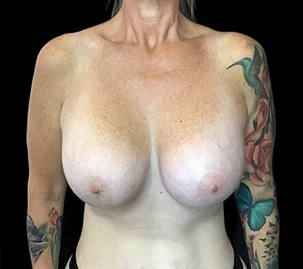 Remove And Replace And Lift Implants Brisbane 1 RA