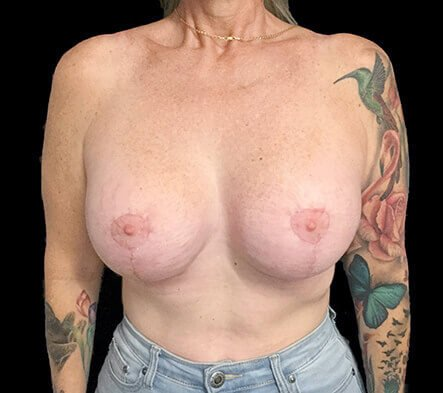 Remove And Replace And Lift Implants Brisbane 2 RA
