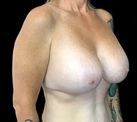 Remove And Replace And Lift Implants Brisbane 5 RA