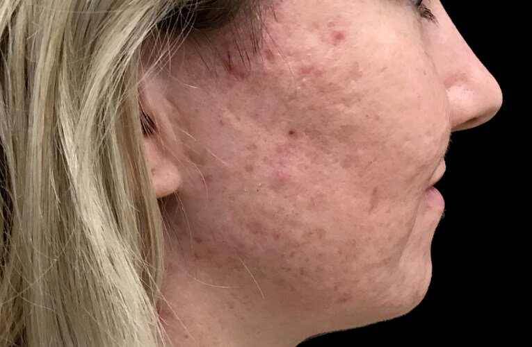 Skin Peels Acne Anti Ageing Therapist Brisbane Ipswich JC 1