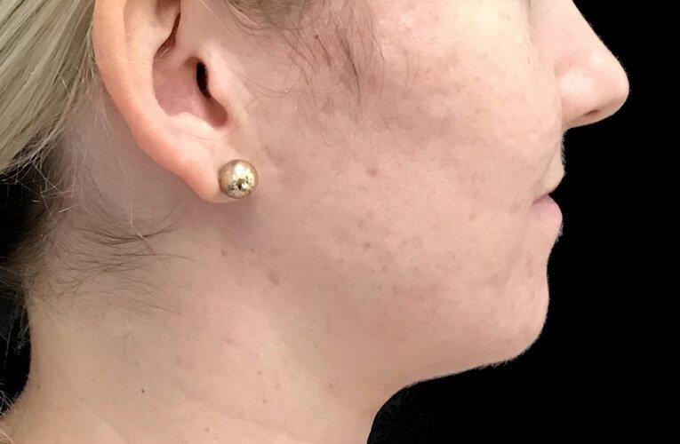 Skin Peels Acne Anti Ageing Therapist Brisbane Ipswich JC 4