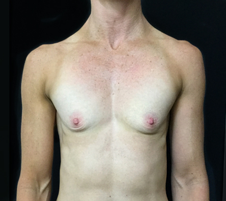 a.-Breast-augmentation-for-fit-woman-before-photo