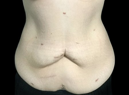 Abdominoplasty Brisbane Dr Sharp TS 1