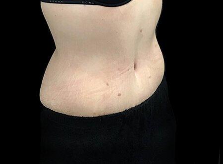 Abdominoplasty Brisbane Dr Sharp TS 3