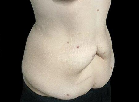 Abdominoplasty Brisbane Dr Sharp TS 4