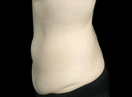 Abdominoplasty Brisbane Dr Sharp TS 6