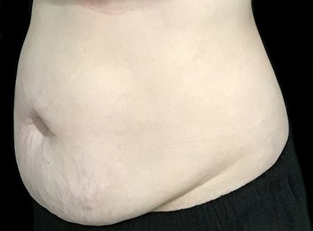 Abdominoplasty Brisbane MY Before And After 3