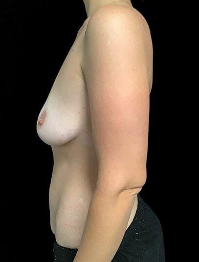 Abdominoplasty, Breast Augmentation And Mastopexy 360cc Ergonomix JG 1