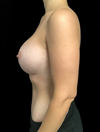 Abdominoplasty, Breast Augmentation And Mastopexy 360cc Ergonomix JG 2