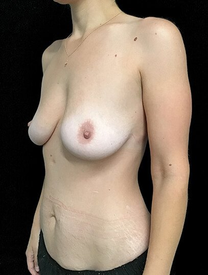 Abdominoplasty, Breast Augmentation And Mastopexy 360cc Ergonomix JG 3