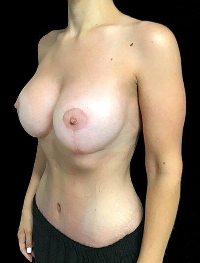 Abdominoplasty, Breast Augmentation And Mastopexy 360cc Ergonomix JG 4