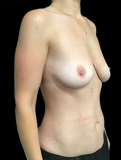 Abdominoplasty, Breast Augmentation And Mastopexy 360cc Ergonomix JG 5