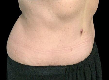 Abdominoplasty Plastic Surgeon Dr David Sharp KK 3