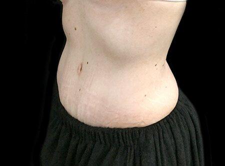 Abdominoplasty Tummy Tuck Dr Sharp 2 HE
