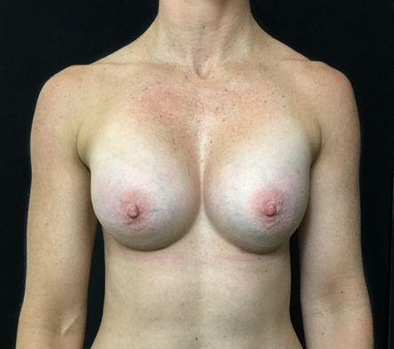 b.-Breast-augmentation-for-fit-woman-after-photo-plastic-surgeon-Brisbane-Ipswich-1