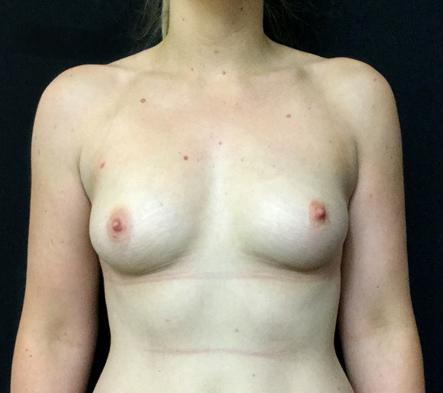 before-breast-augmentation-Brisbane