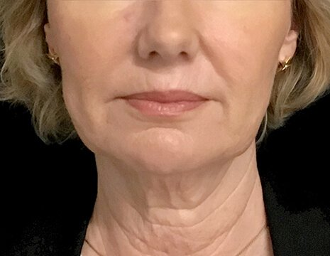 Before And After Facelift Surgery With Dr Sharp Plastic Surgeon 1