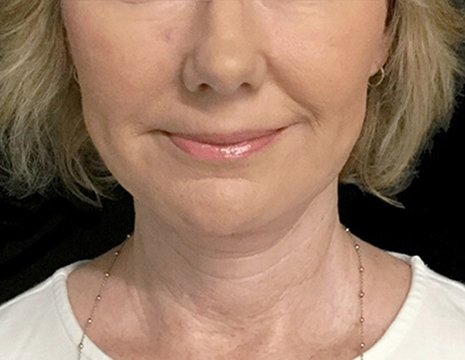 Before And After Facelift Surgery With Dr Sharp Plastic Surgeon 2