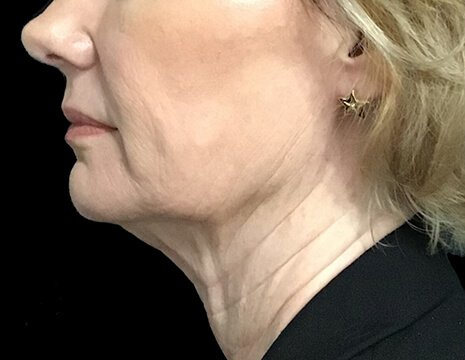 Before And After Facelift Surgery With Dr Sharp Plastic Surgeon 5