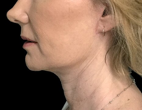Before And After Facelift Surgery With Dr Sharp Plastic Surgeon 6