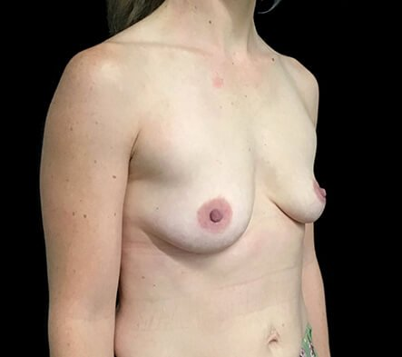Before Breast Augmentation With Dr Sharp 345cc Anatomical High Profile Implants AT 1