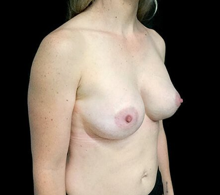 Before Breast Augmentation With Dr Sharp 345cc Anatomical High Profile Implants AT 2