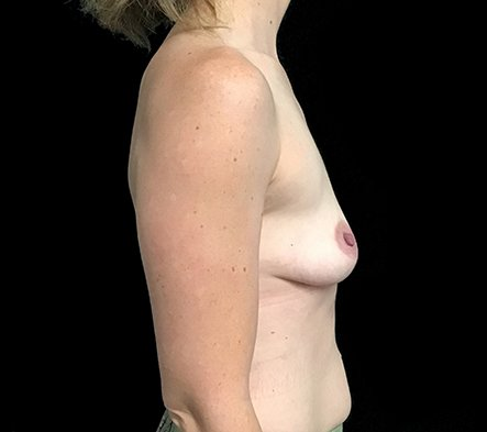 Before Breast Augmentation With Dr Sharp 345cc Anatomical High Profile Implants AT 3
