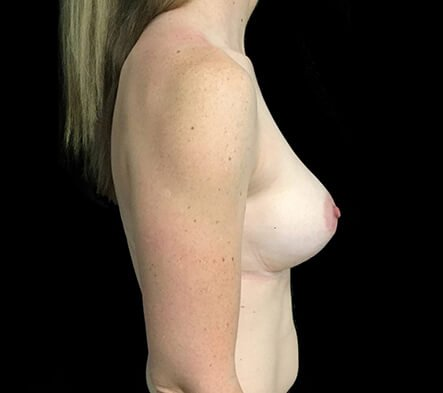 Before Breast Augmentation With Dr Sharp 345cc Anatomical High Profile Implants AT 4 Copy