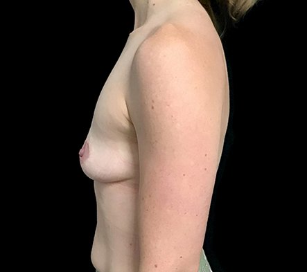 Before Breast Augmentation With Dr Sharp 345cc Anatomical High Profile Implants AT 5