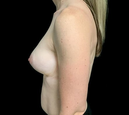 Before Breast Augmentation With Dr Sharp 345cc Anatomical High Profile Implants AT 6
