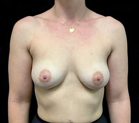 best-Brisbane-plastic-surgeon-breast-augmentation-surgery-Dr-Sharp-before-KT
