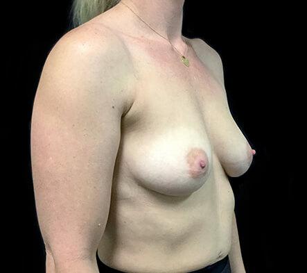 best-Brisbane-plastic-surgeon-breast-augmentation-surgery-Dr-Sharp-before-side-KT-1