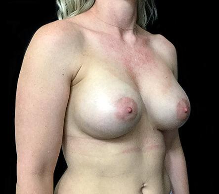 best-Brisbane-plastic-surgeon-breast-augmentation-surgery-Dr-Sharp-before-side-KT