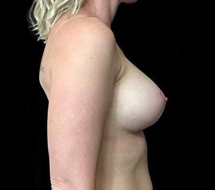 best-Brisbane-plastic-surgeon-breast-augmentation-surgery-Dr-Sharp-side-after-KT