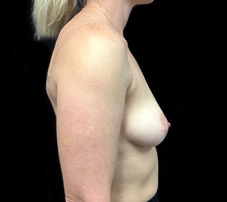 best-Brisbane-plastic-surgeon-breast-augmentation-surgery-Dr-Sharp-side-before-KT