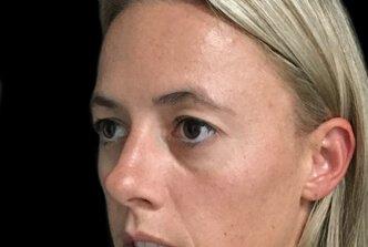 Blepharoplasty Brisbane Dr Sharp EH 1