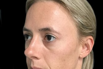 Blepharoplasty Brisbane Dr Sharp EH 2
