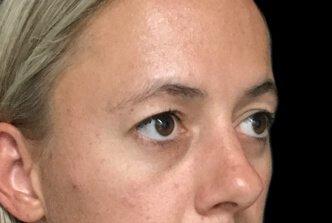 Blepharoplasty Brisbane Dr Sharp EH 4