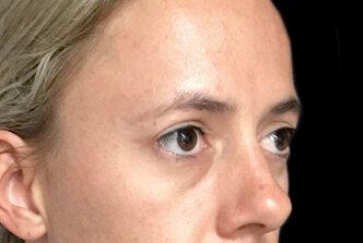Blepharoplasty Brisbane Dr Sharp EH 6