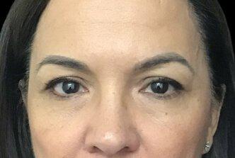 Blepharoplasty Before And After Dr Sharp 1